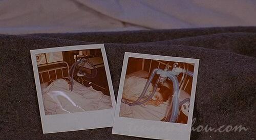 ポラロイド写真に写る患者の姿